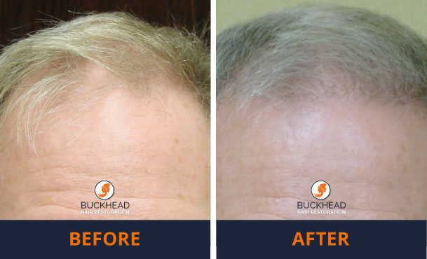 Before-and-After-1,500-Grafts Male Hair Loss Solutions are here!