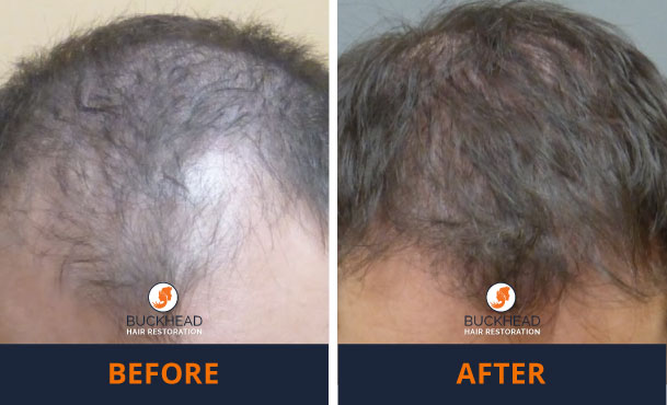 Before and After 2,500 Grafts Male Hair Loss