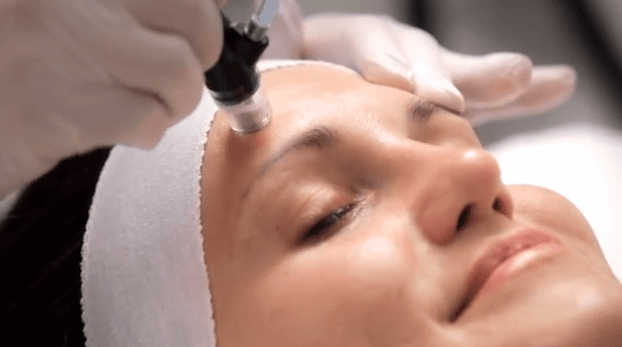 Silk_peel_microdermabrasion_CS_CU