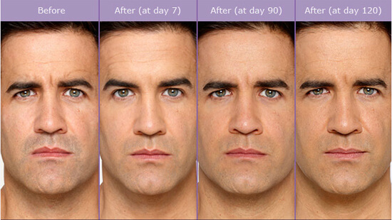 Male Botox Treatment in Atlanta