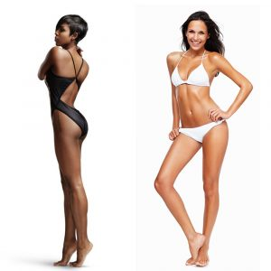 Vampire Breast Lift can be ideal for women with mild to moderate sagging