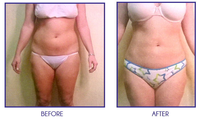 Liposuction of abdomen, back, and flanks