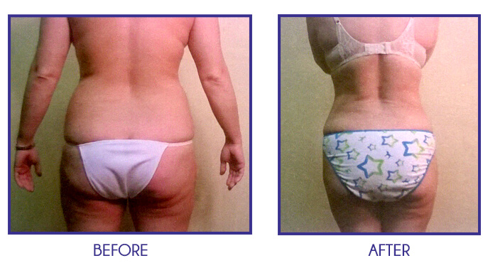 Liposuction of abdomen, back and flanks before and after 3 months* Results are not guaranteed and vary from patient to patient