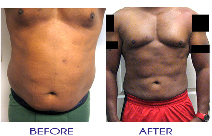 Male ThermiRF Atlanta Pure Lipo