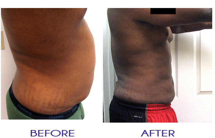 Atlanta ThermiRF Male Pure Lipo