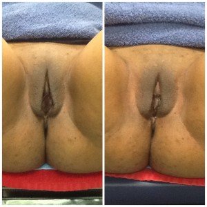 ThermiVa Before & After One Treatment