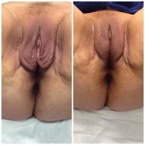 Feminine Rejuvenation Treatments