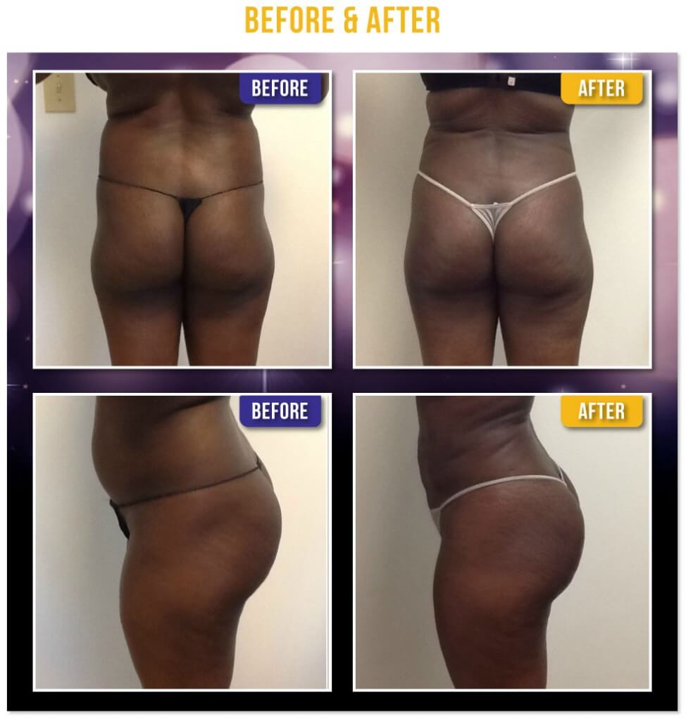 Liposuction of the abdomen, flanks, and back. Before and after Fat Transfer to the Buttocks - Brazilian Butt Lift