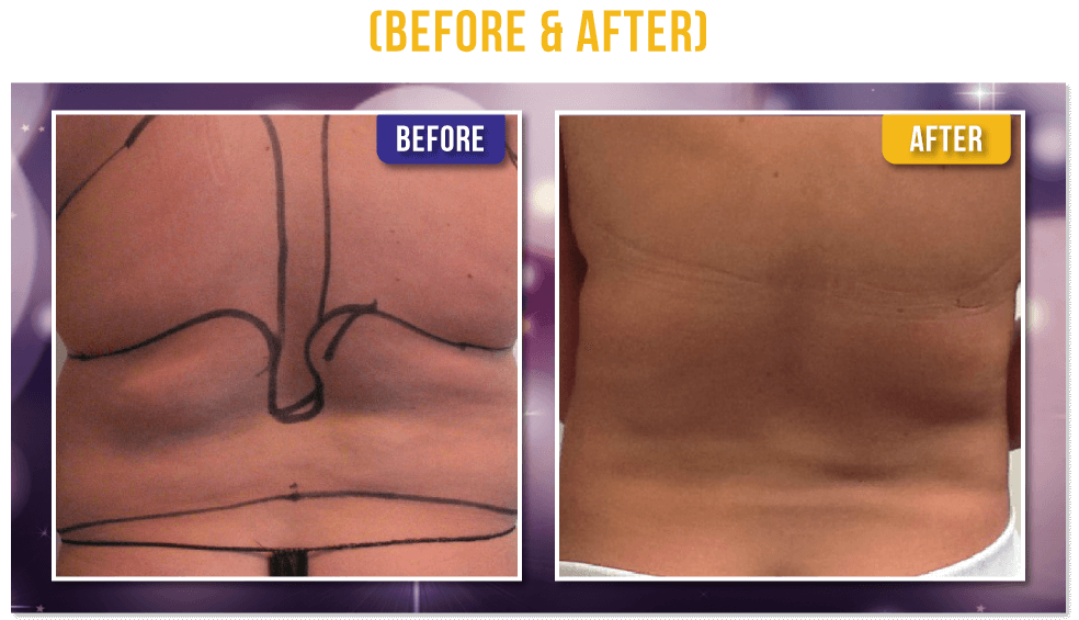 Liposuction PureLipo™ Before & After