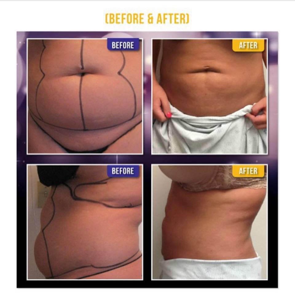 great liposuction results