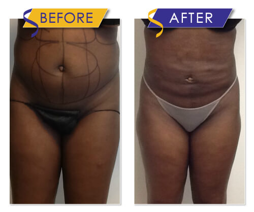 Liposuction, Fat Transfer and ThermiTight Procedures by Dr. Monte Slater