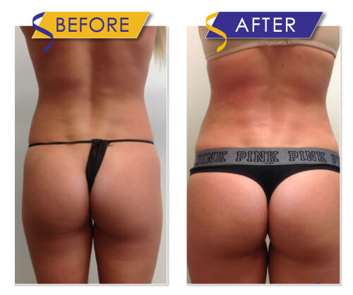 Brazilian Butt Lift via Liposuction with Fat Transfer by Dr. Monte Slater