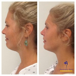 Vivace RF Skin Treatments - Micro-Needling with Radiofrequency before and after 6 weeks.