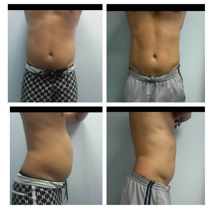 29 Year Old Male - Before and After 4 Treatments with the Ultra Slim II - Treatment Goal - Fat Reduction and Sculpting