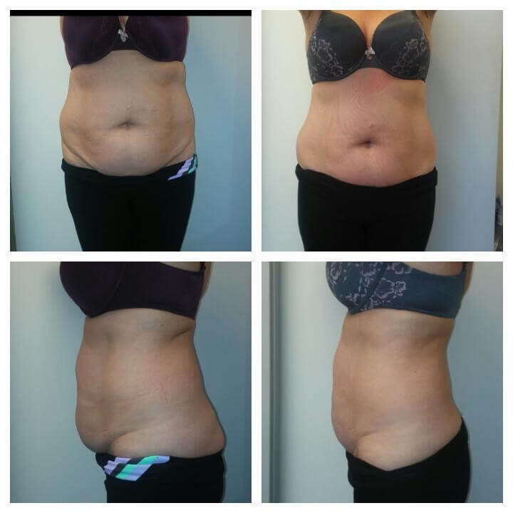 56 Year Old Female Before and After 4 Treatments with Ultra Slim Plus II - Treatment Goal - Reduction in Skin Laxity and Fat Reduction