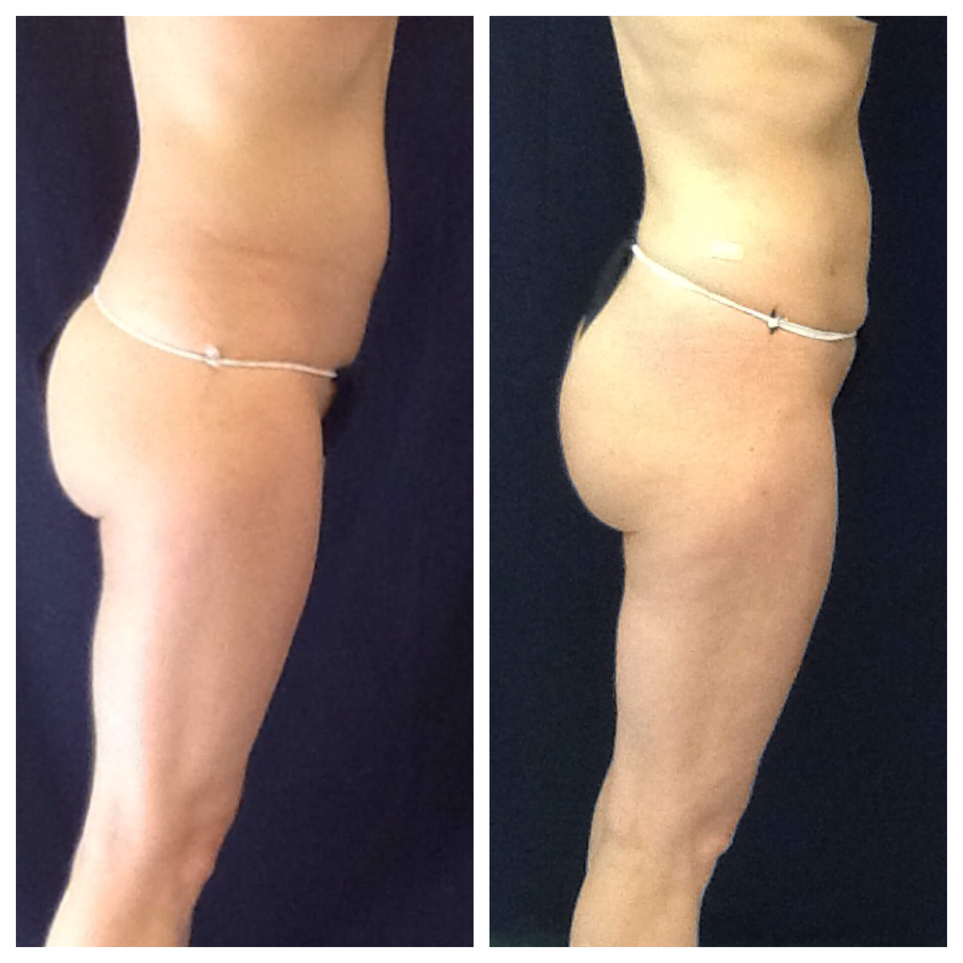 8 Weeks Before and After Liposuction of the abdomen, flanks, lower back,  inner thigh. Fat transfer gluteal 350 cc's per side. ThermiTight lower thighs and inner thighs