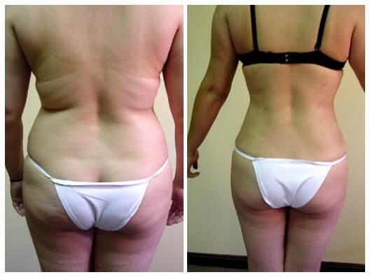 Liposuction of back and flanks before and after 6 weeks