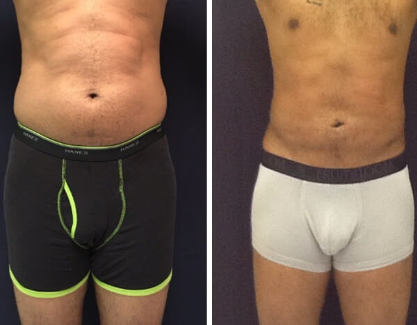 Liposuction of abdomen, flanks and back - before and after 6 weeks