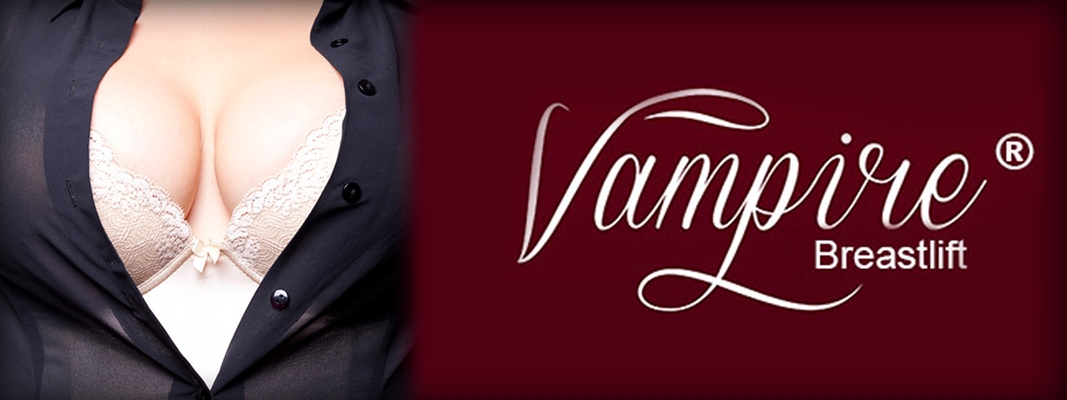 Buckhead Vampire Breastlift Atlanta