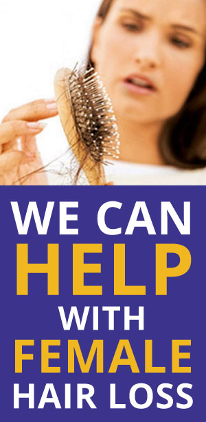 More About Female Hair Loss