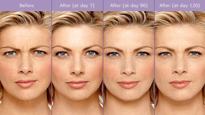 Atlanta Botox Results with Aesthetic Body Sculpture Clinic