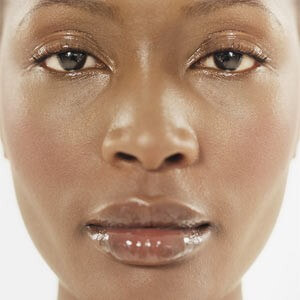 Micro-needling for all ethnicities