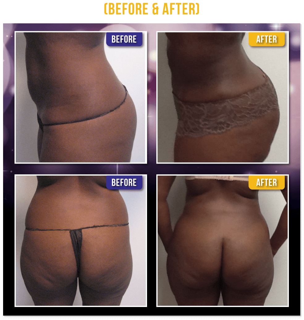 Brazilian Butt Lift Before & After - Dr. Slater's patients get great results and a shapely body and lifted rounder Buttocks