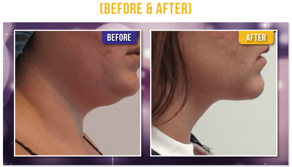 TermiTight Skin tightening - Liposuction -PureLipo™ Before & After