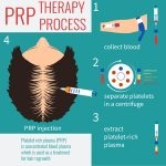 Platelet Rich Plasma Treatments