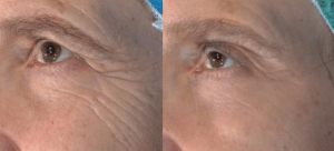 Vivace Micro-Needling RF Before and After Pictures