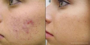 Vivace RF Micro-Needling can be used for for active Acne and to reduce scars caused by acne.