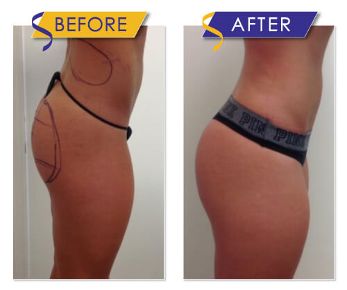 Sculptra Injectable as an alternative Butt Lift