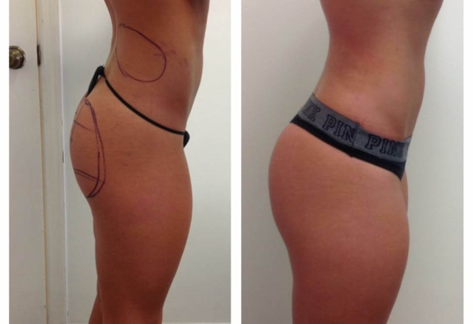 Liposuction with Sculptra Butt lift alternative for the Brazilian Butt Lift