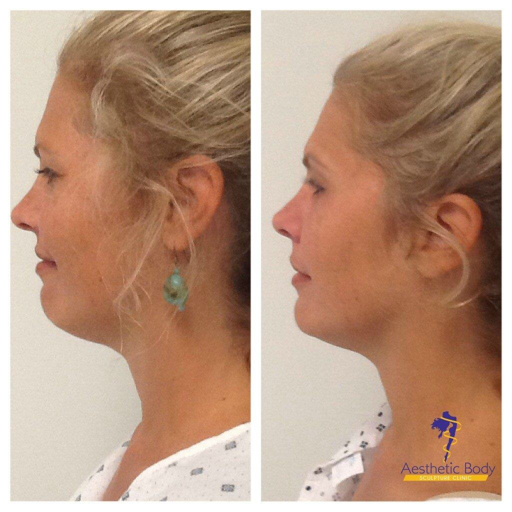 VivaceRF Micro-Needling before and after 6 weeks.