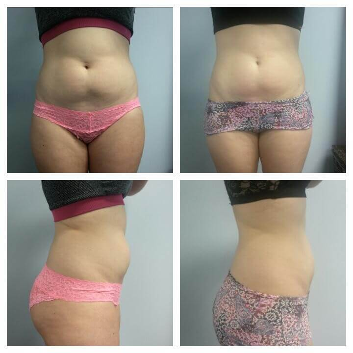 23 Year Old Female - Before and After 3 Treatments - Treatment Goal Fat Reduction and Body Sculpting