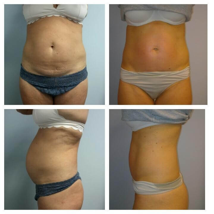 50 Year Old Female - Before and After  4 Treatments with the Ultra Slim Plus II - Treatment Goal - Skin Tightening - Fat Reduction and Sculpting of Abs