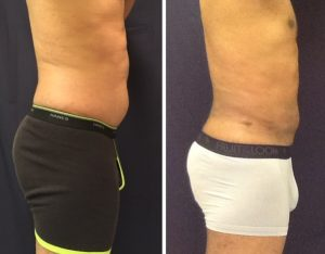 Liposuction of the abdomen flanks and back before and after 6 weeks