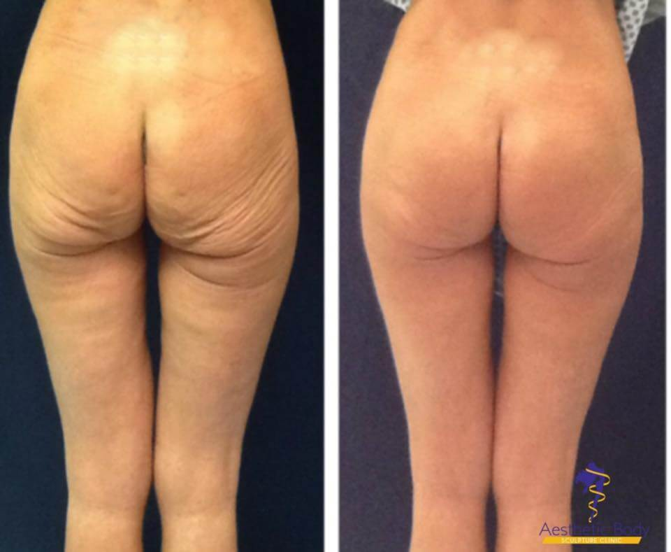 Sculptra Injectable is a safe method to achieve a rounder fuller Butt. Sculptra Butt Lift Before and After