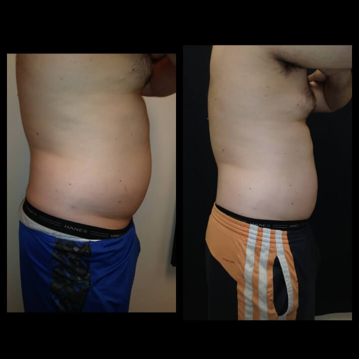Before & After 2 Body Sculpting Treatments for Fat Reduction - Patient lost 6 inches in 2 sessions