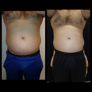 Body Sculpting Treatments - 6 inch reduction with 2 treatments only