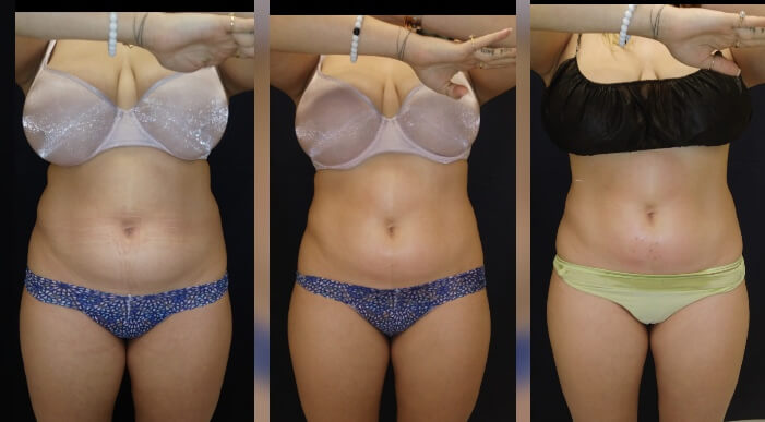 30-year old Before and after 3 Posh Body Slim Body Contouring Sessions - Treatment Goal Fat Reduction & Skin Tightening