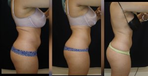 before and after 2-body sculpting-treatments Treatment-goal-fat-reduction-skin-tightening