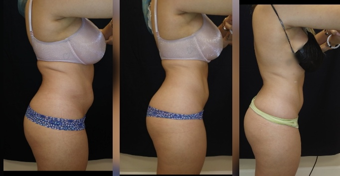 Before and after 2 Ultra Slim Plus II Body Sculpting Treatments - Treatment Goal Fat Reduction & Skin Tightening