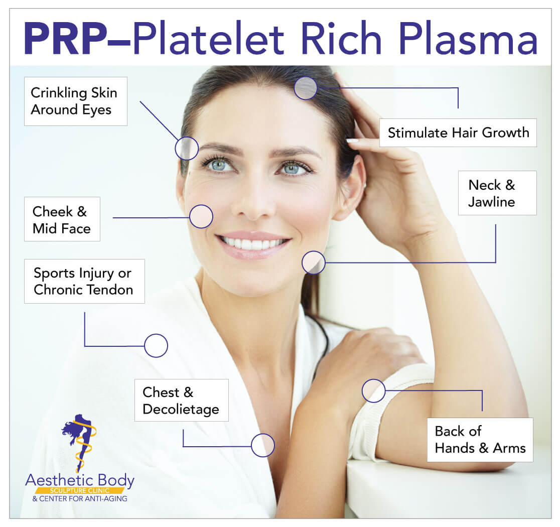 Skin Care Treatments with Platelet Rich Plasma from the patient's blood is highly effective. This chart points out what areas can be effectively treated