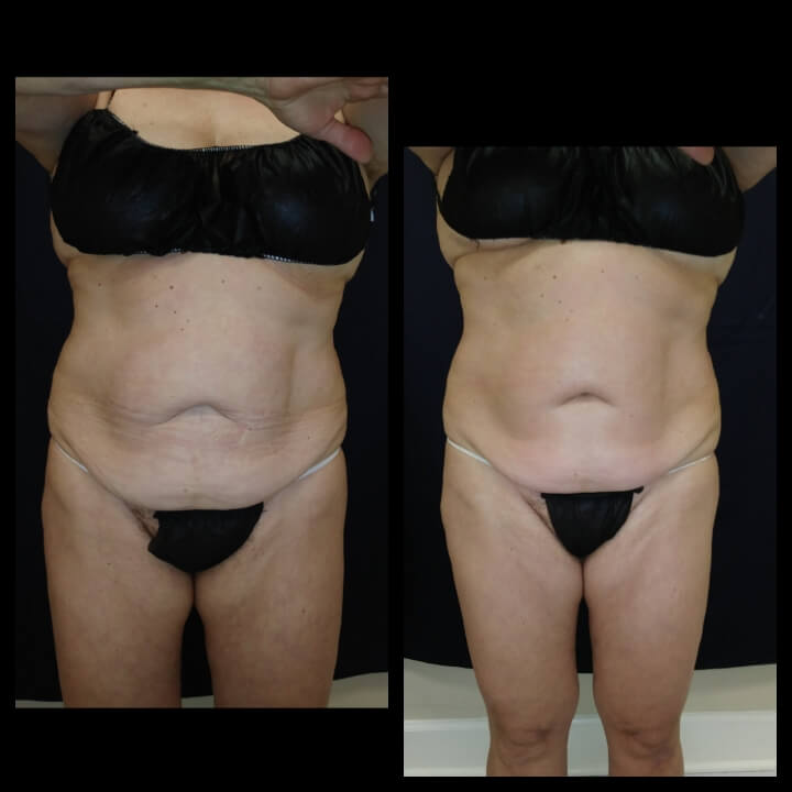 68-year old before and after 2 Posh Body Slim Body Contouring Sessions - Treatment Goal Fat Reduction & Skin Tightening