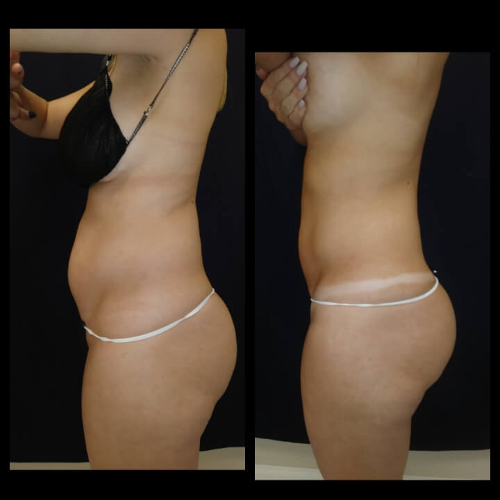 Before and after 3 Ultra Slim Plus II Body Sculpting Treatments - Treatment Goal Fat Reduction and Skin Tightening.