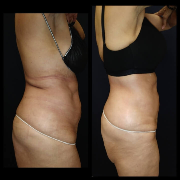 66-year old before and after 2 Posh Body Slim Body Contouring Sessions - Treatment Goal Fat Reduction & Skin Tightening