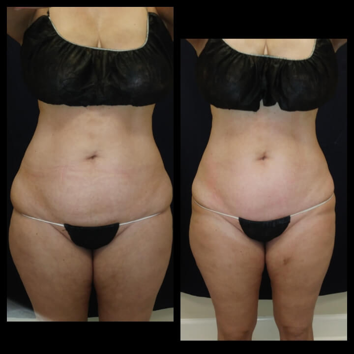 Before and after 3 Posh Body Slim Body Contouring Sessions - Treatment Goal Fat Reduction & Skin Tightening