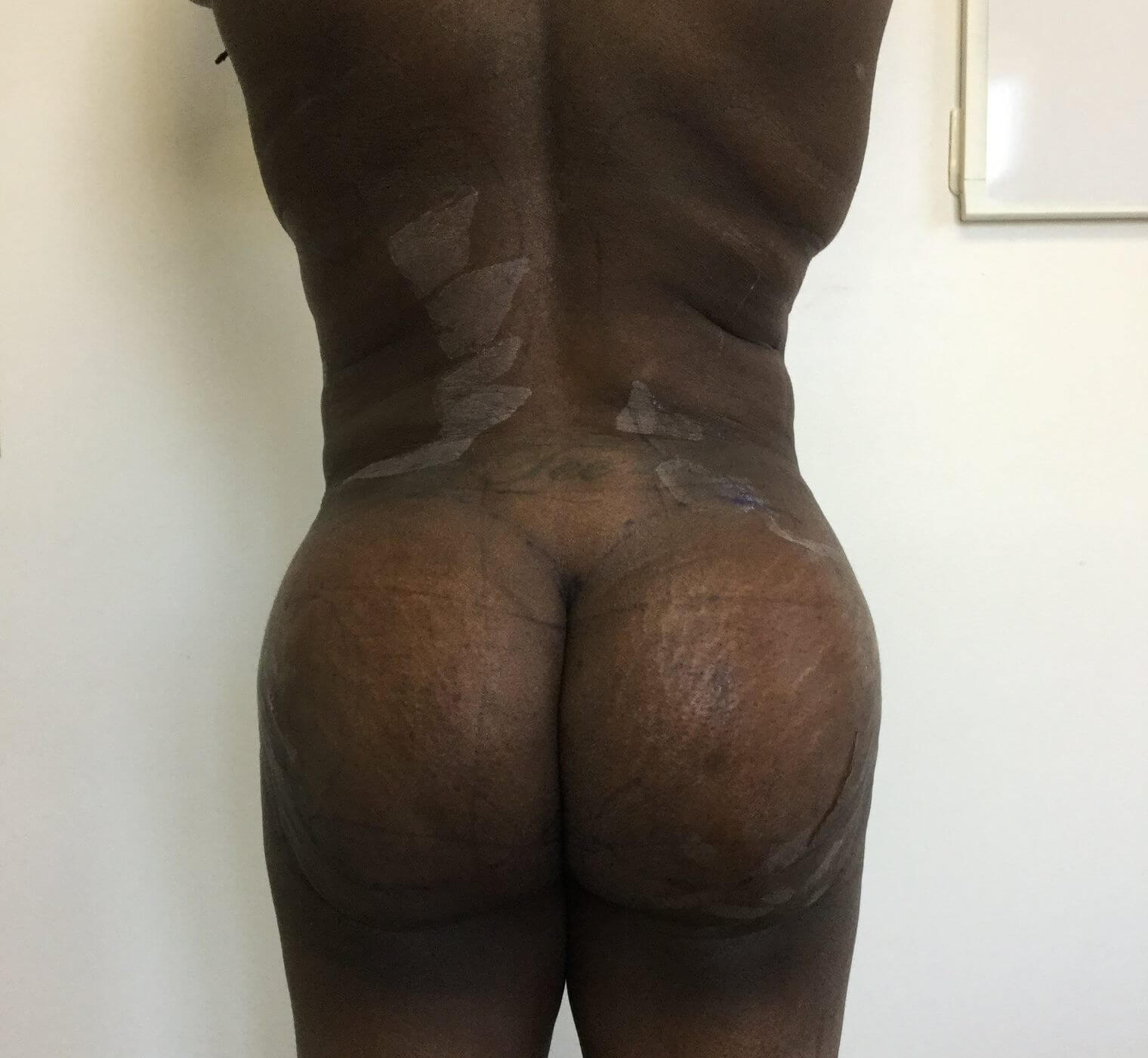After Lipo and Fat Transfer #Brazilian Butt Lift