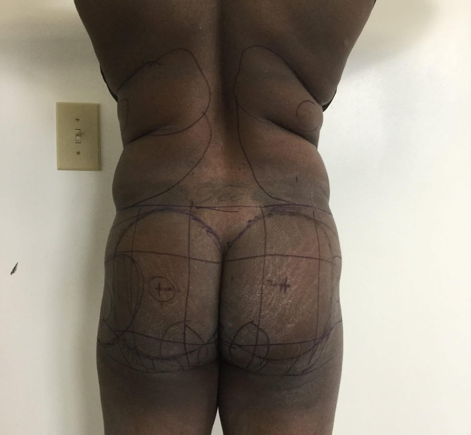 Before Lipo and Fat Transfer #Brazilian Butt Lift